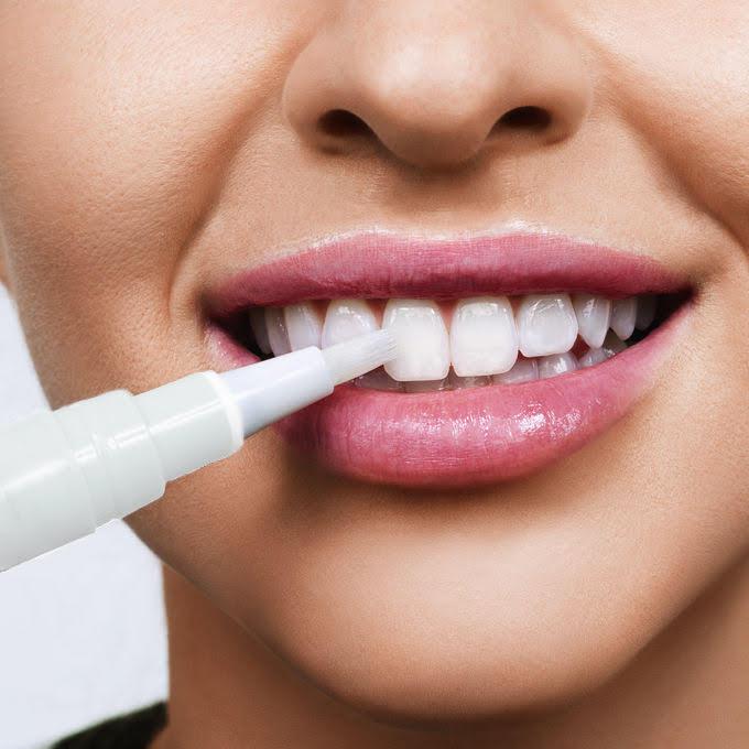 Zahnaufhellungsstift - Natürlicher Zahnaufhellungsstift.