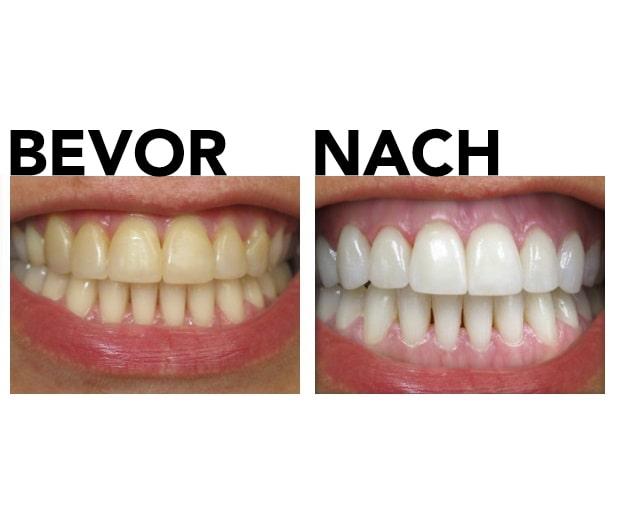 Zahnweiß-Kit vor und nach dem Testbild